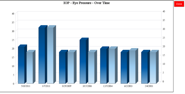Chart IOP