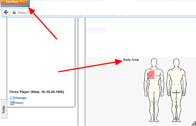 A recent Firefox upgrade affected the display of Injury Areas on Body Diagrams. This has been resolved