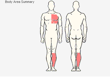 Body Area Summary provides the same diagram as the Body Area, but it does not provide a trackable list of areas to use for analysis, it only shows them on the diagram