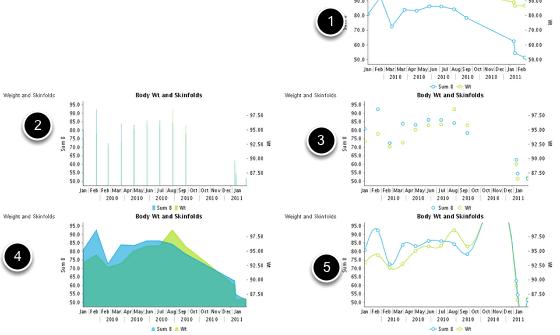 Example History Chart Options: #1-Line, #2-Bar, #3-Dot, #4-Area and #5-Spline