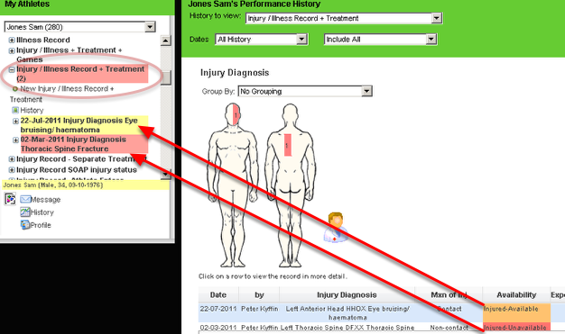 An example of a performance standard being used in conjunction with the status fields for an injury and/or illness (see the lesson on status fields for injuries and illness to find out more about this)