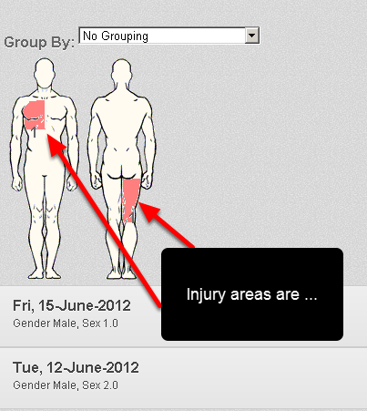 The Body Chart and Injury/Illness chart now shows areas of injury in red
