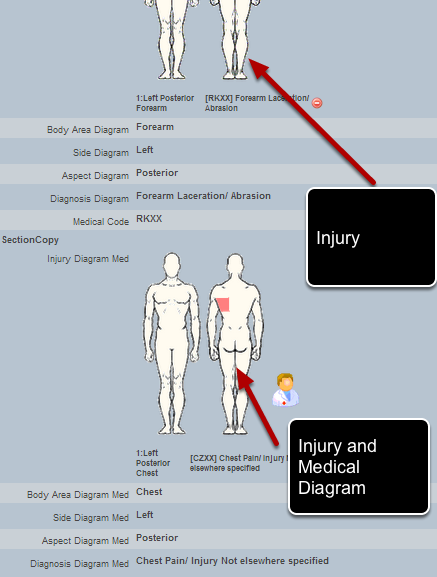 The same calculations can be used for an OSICS Injury Diagram or for an OSICS Injury Diagram with Medical Code