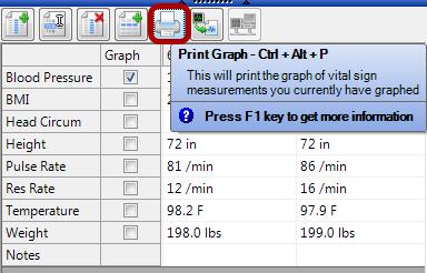 Printing a Graph