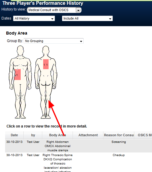 Athlete History:The Body Diagram now ONLY appears if it is selected to appear by default in tables